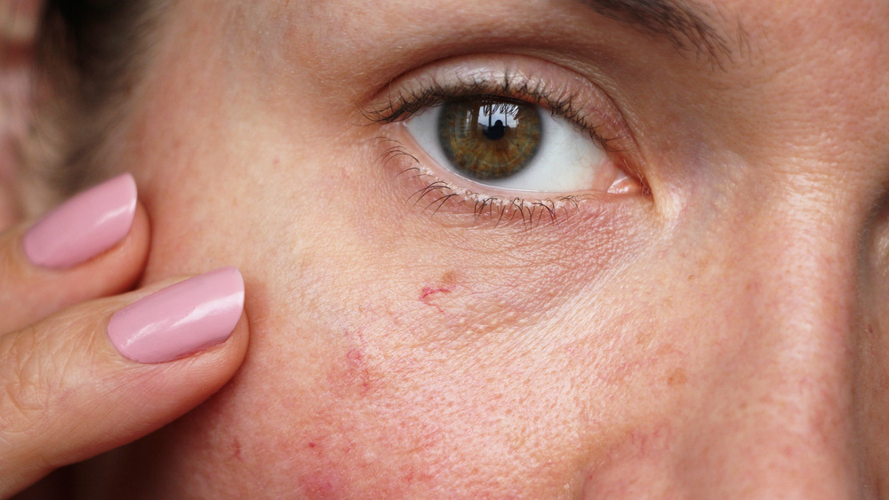 Woman touching skin near her eye
