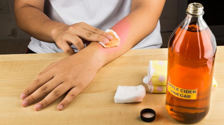 Woman using vinegar for sunburn