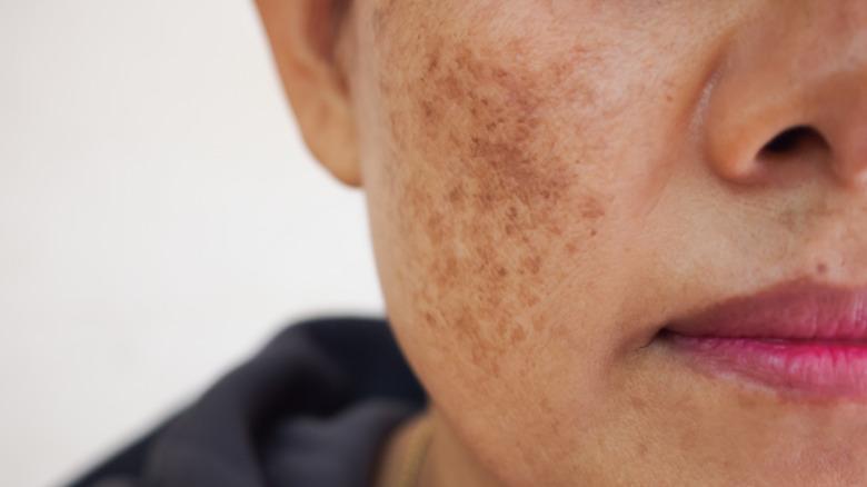Close-up of hyperpigmentation on cheek