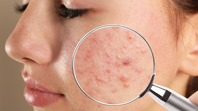 A magnifying glass over acne and scars on a woman's face