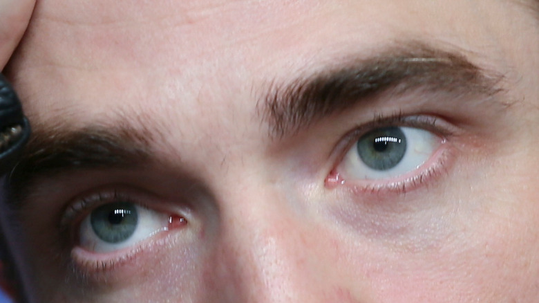 Robert Pattinson's sanpaku eyes