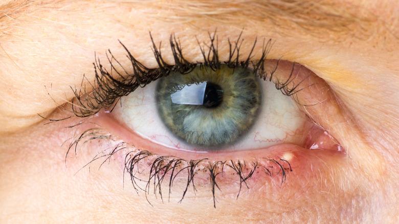 A stye in the woman's eye.