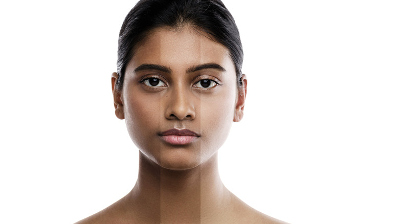 woman with lightened skin