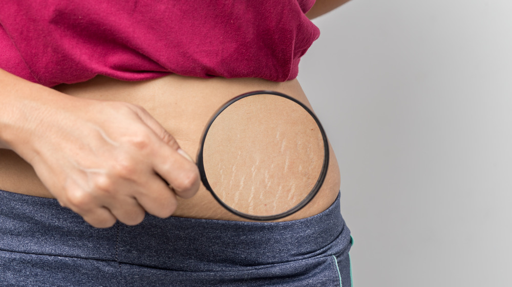 A woman holding magnifying glass to stretch marks