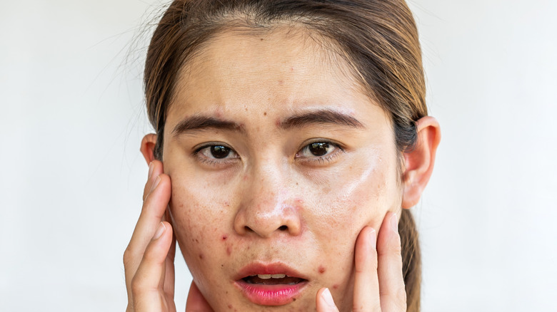 A woman struggling with sebaceous filaments
