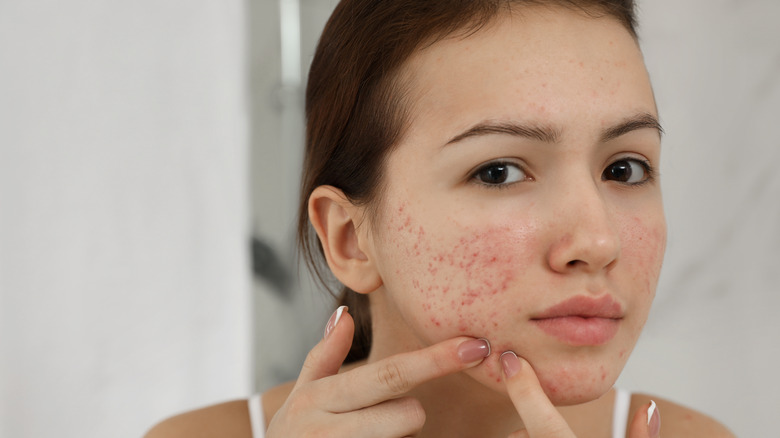 Teenage girl with pimples