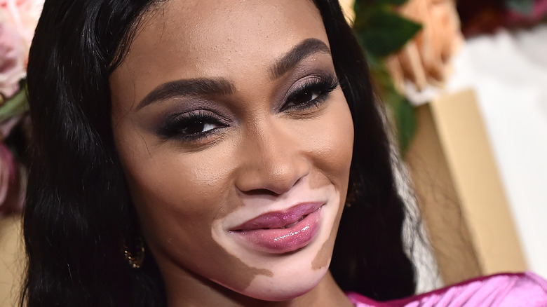 Winnie Harlow posing at event