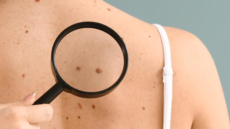 Dermatologist examines moles