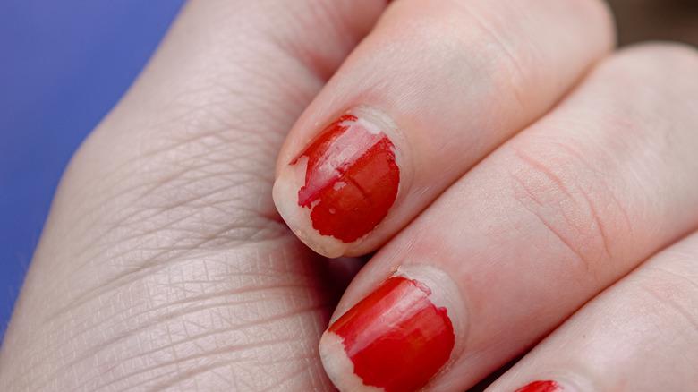 Woman with chipped nail polish
