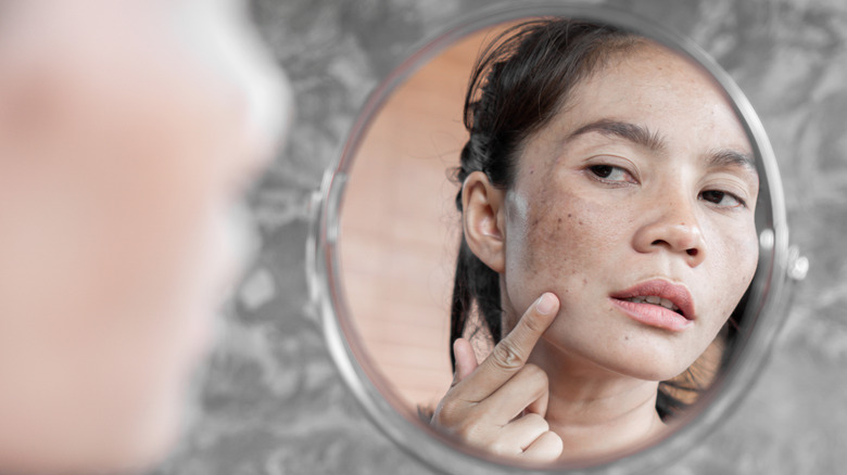 Woman with dark spots on her face