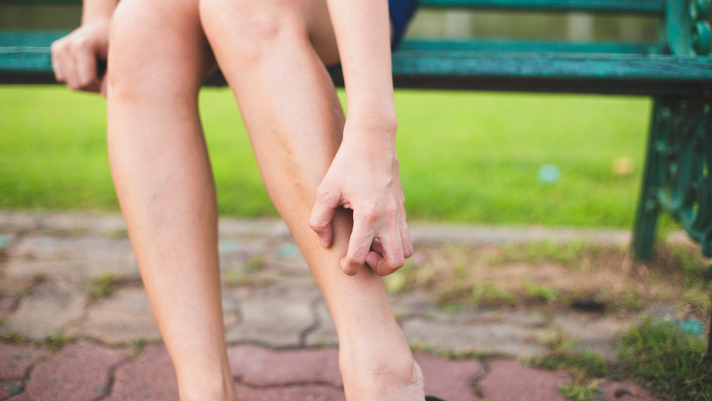 Woman scratching her leg