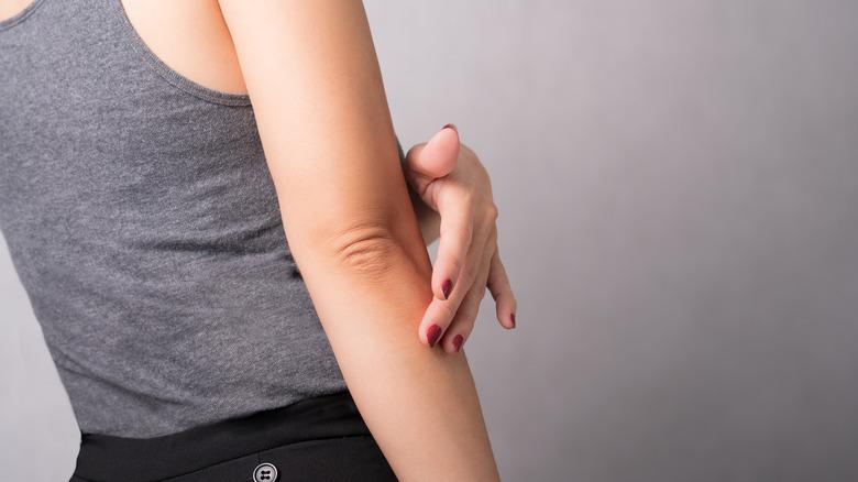 woman rubbing arm