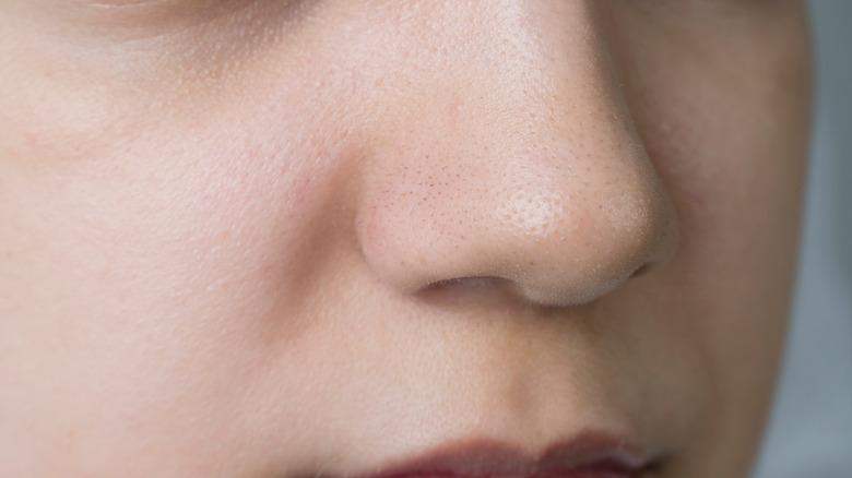 Blackheads close up