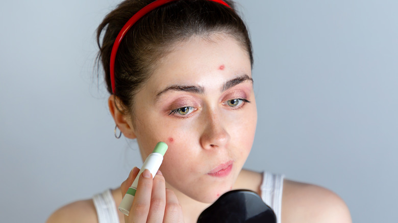 Woman concealing pimples