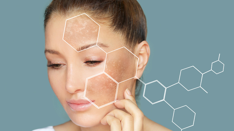 Woman with hyperpigmentation and graphic of chemical compound