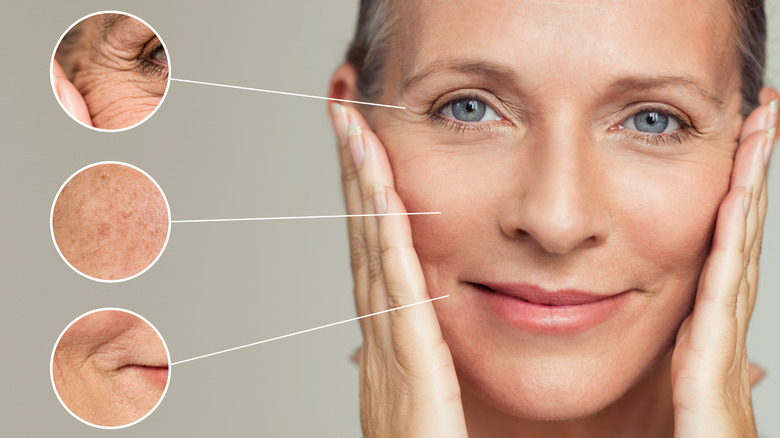 Woman after skin treatments