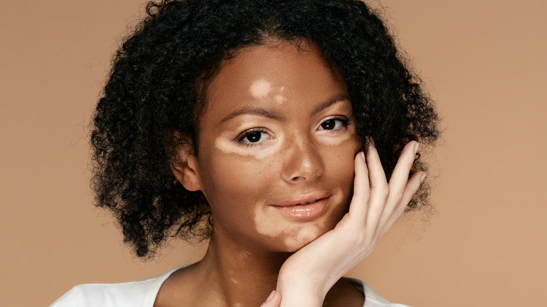 Young woman with vitiligo on her face and hand