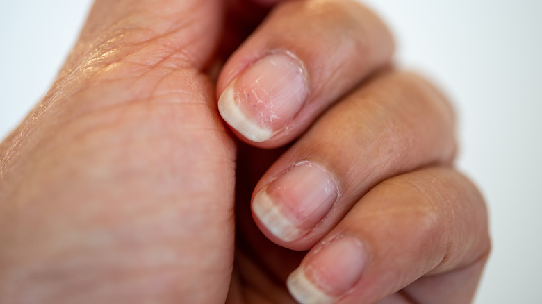 Hand with pitted nails