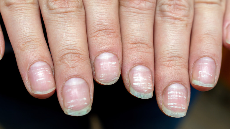Fingernails with grooved lines