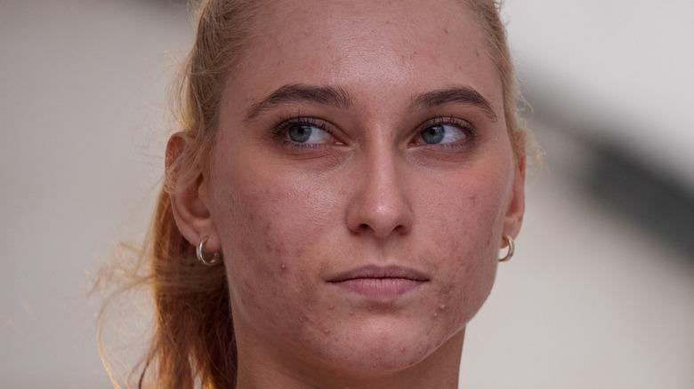 Janja Garnbret looking off to the side