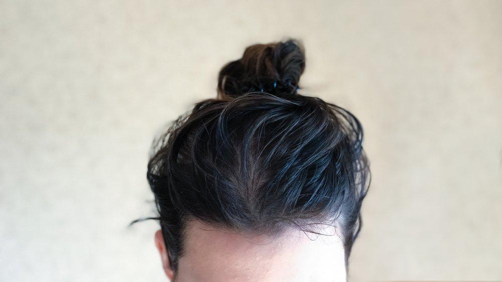 Greasy scalp in a bun