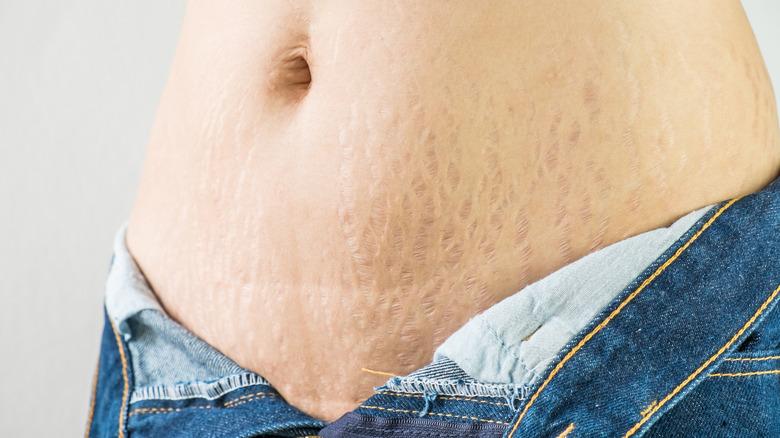 stretch marks on a belly