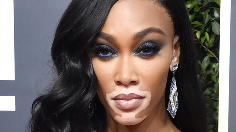 Model Winnie Harlow poses on the red carpet