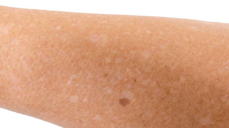 White freckles