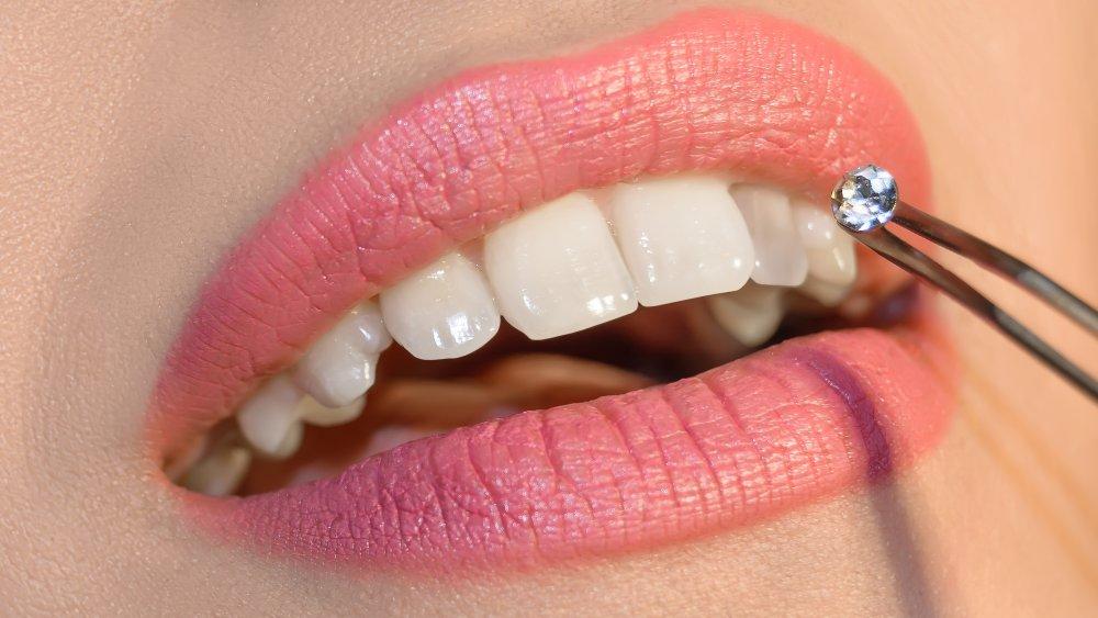 Woman applying tooth gem
