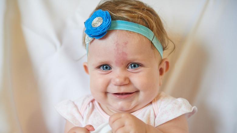 Baby with birthmark
