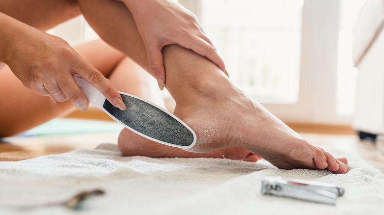 Woman removing her calluses