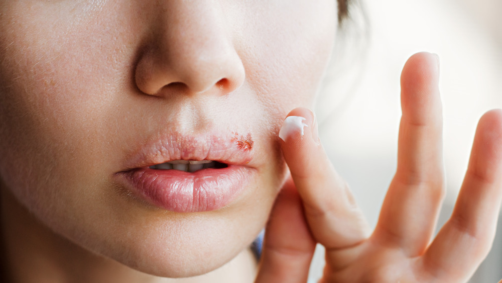Applying cream to cold sores