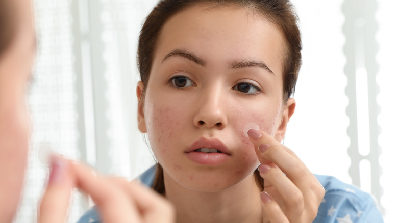 Woman applying a hydrocolloid patch close up