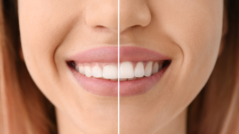 Woman before and after a procedure