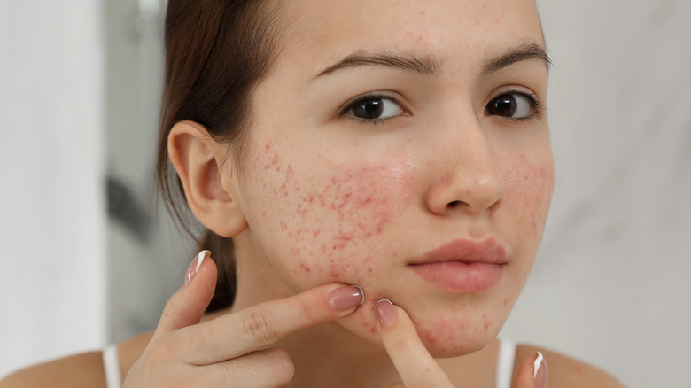 Pimples on face and chin