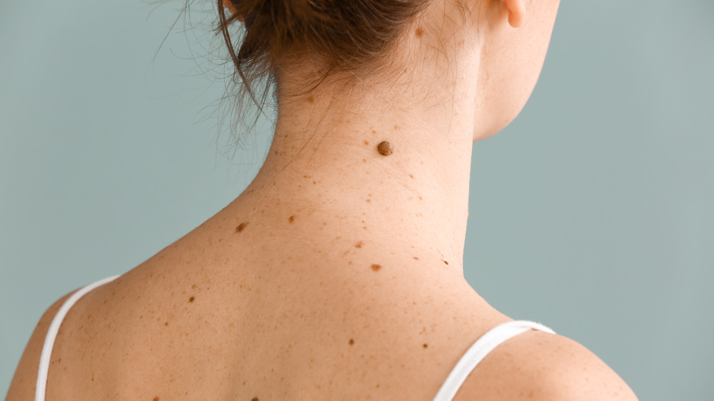 Moles on back and neck