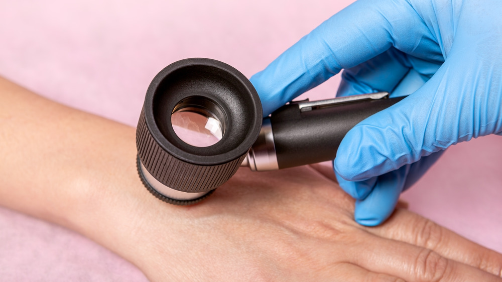 doctor checking mole on a woman's hand