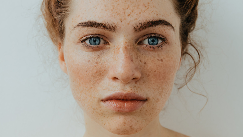 Women with freckles on face