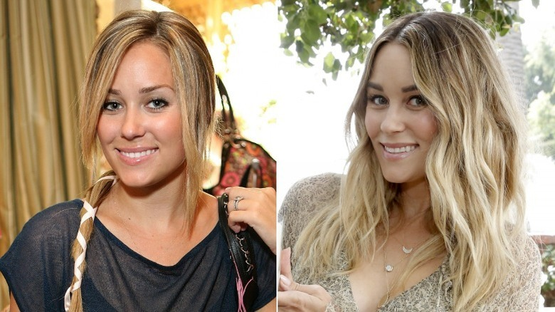 Lauren Conrad smiling, then and now