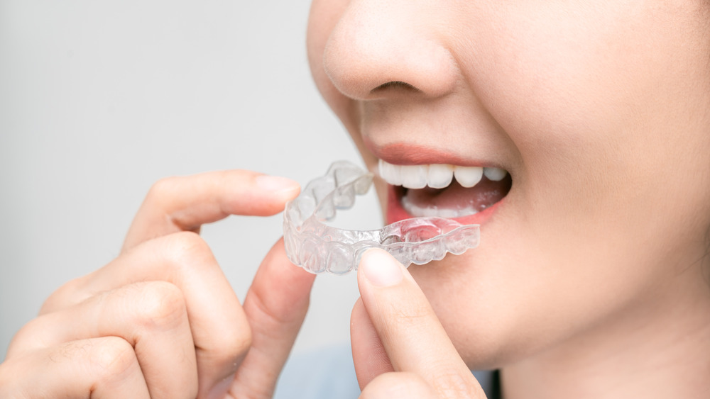 Close-up of woman holding retainer