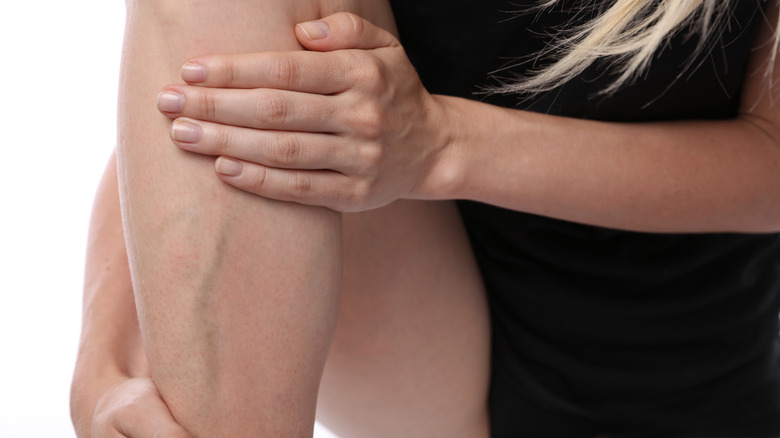 Woman's llgs with varicose and spider veins