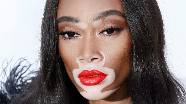 Winnie Harlow poses at a red carpet